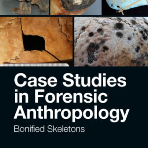 (PDF ebook) – Case Studies in Forensic Anthropology, 1st Edition: Bonified Skeletons