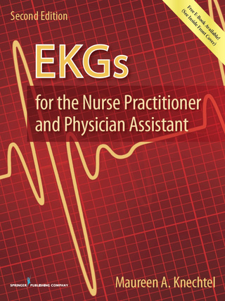 (PDF ebook) EKGs for the Nurse Practitioner and Physician Assistant, 1st Edition
