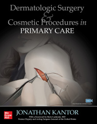 Dermatologic Surgery and Cosmetic Procedures in Primary Care Practice 1st Edition – PDF ebook